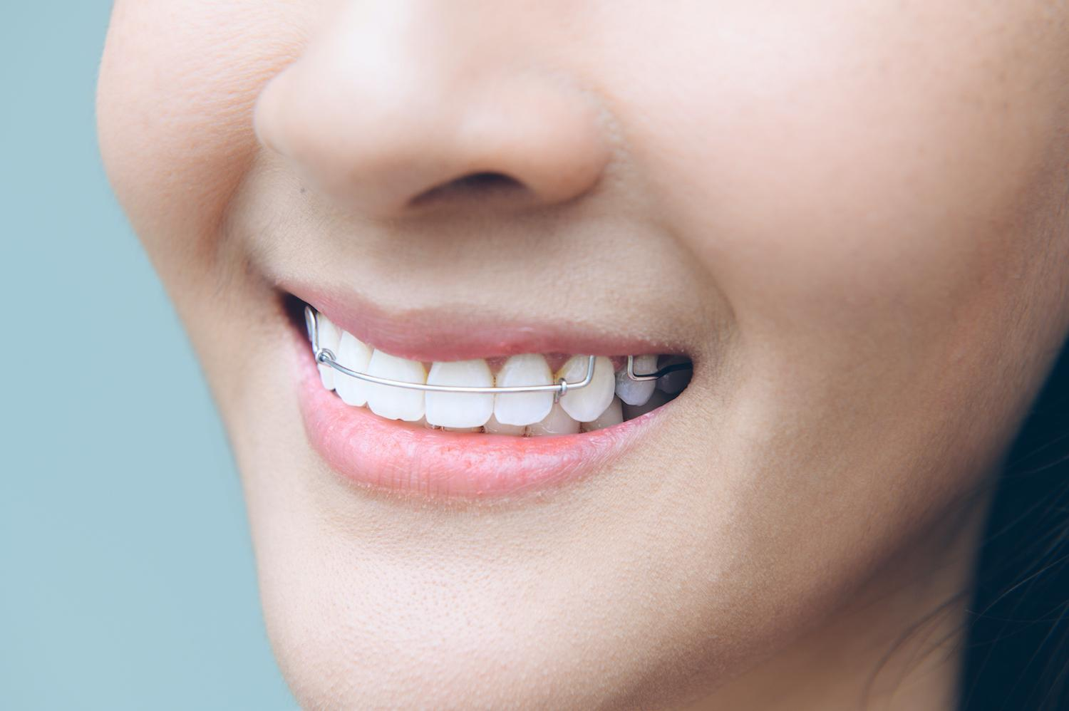 Why Our Houston Dentist Patients Should Wear Retainers After Dental Braces