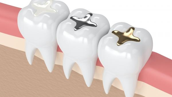 composite fillings comparing to traditional amalgum fillings