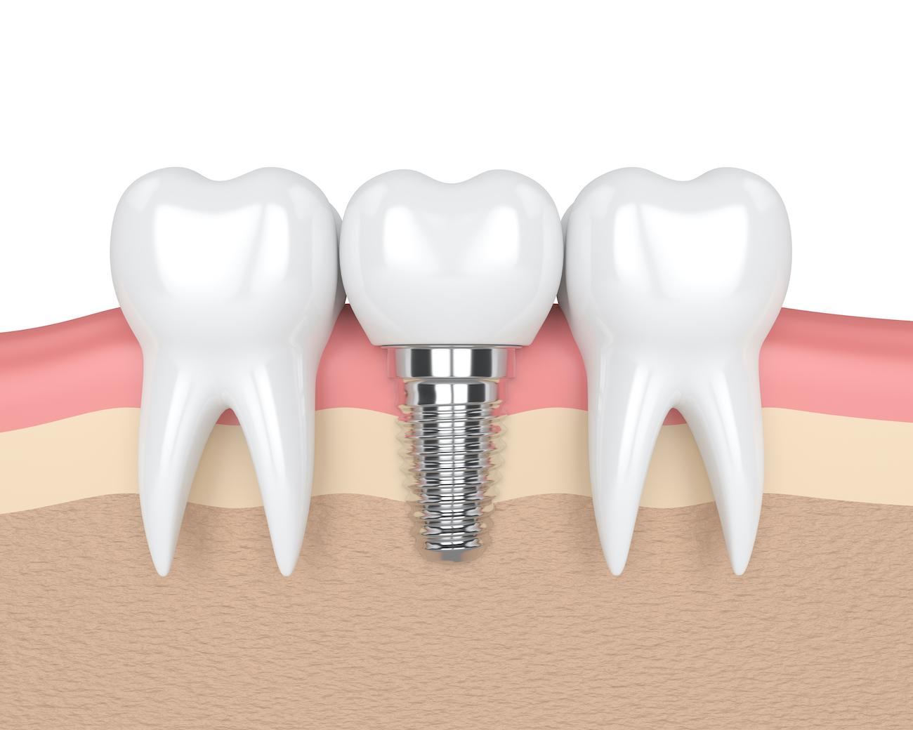 Diagram showing what a dental implant looks like next to natural teeth