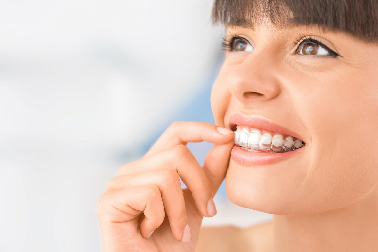 Young woman putting on her Invisalign Clear Aligners After Houston Cosmetic Dentist Visit