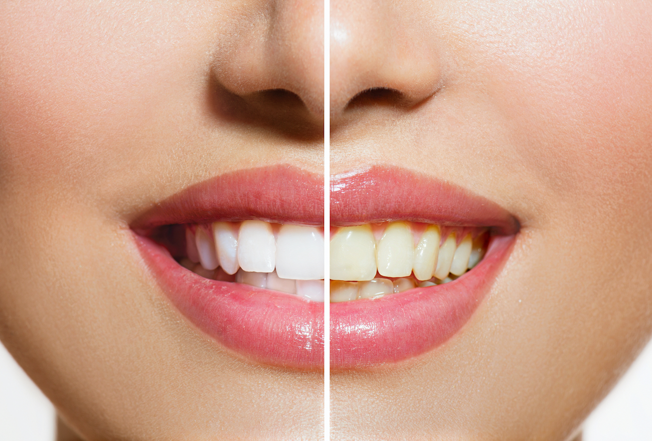 Comparing a patient's teeth before and after teeth whitening with our Houston cosmetic dentist