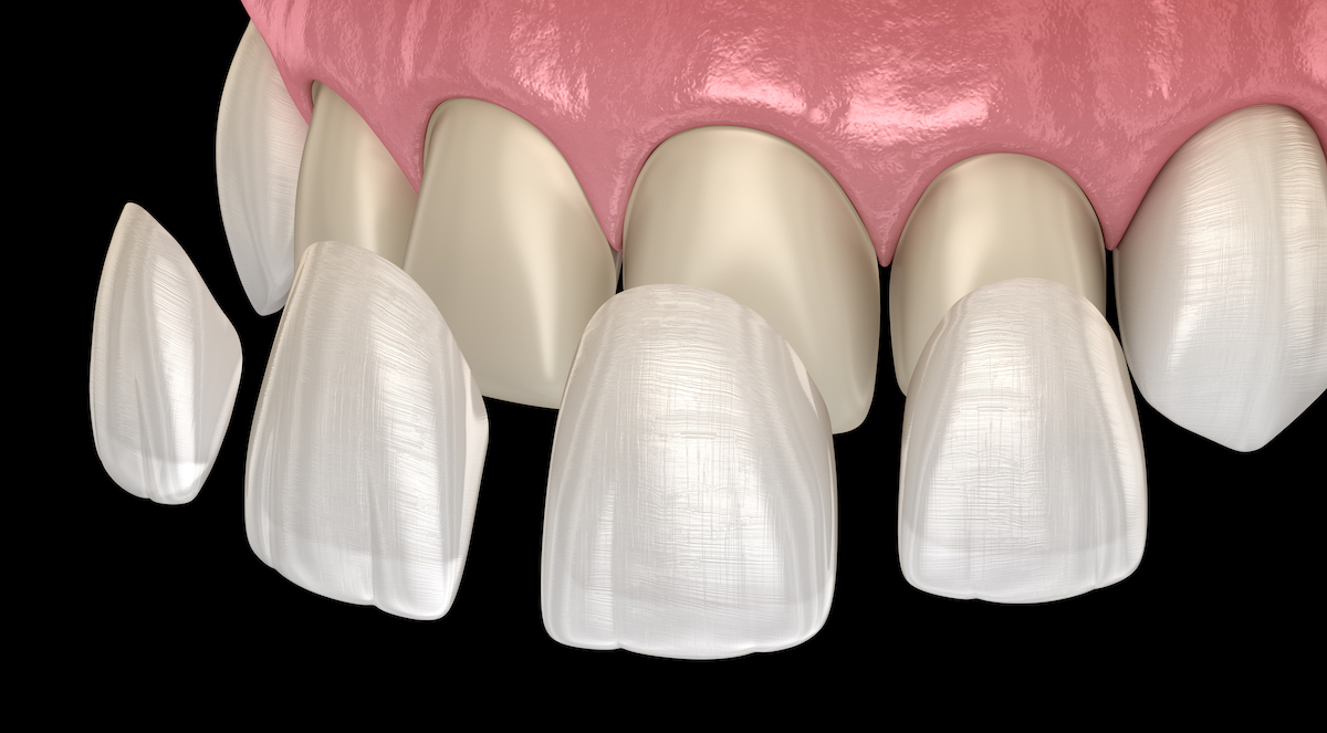 Graphic of houston cosmetic dentist porcelain veneers on natural teeth