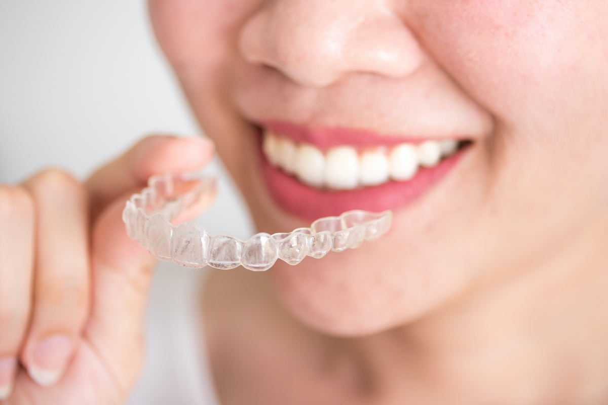 Houston cosmetic dentist patient putting on Invisalign clear aligners