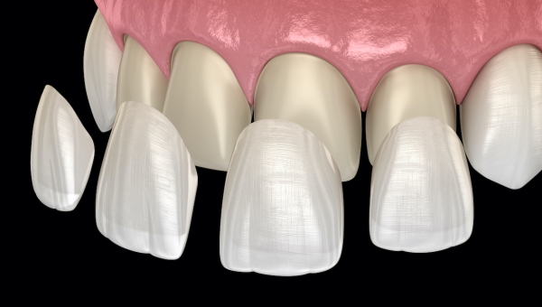 Houston Cosmetic Dental Veneers FAQ