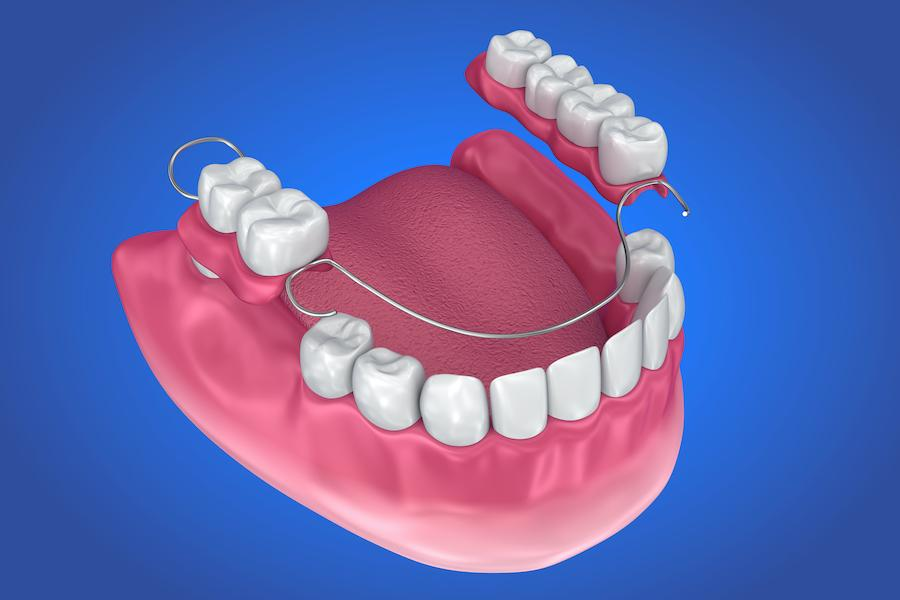houston cosmetic dentist partial denture 3d graphic