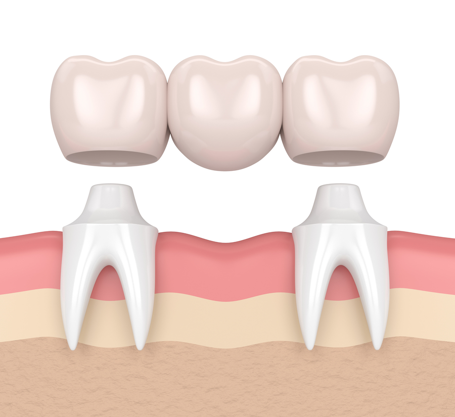 houston dental bridge graphic