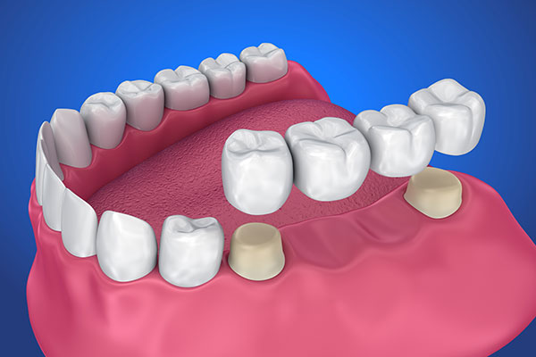 Bridges and Crown Dentistry at Victory Smiles