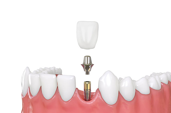 Dental Implants Dentistry at Victory Smiles