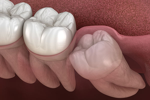 Wisdom Teeth Removal Dentistry at Victory Smiles